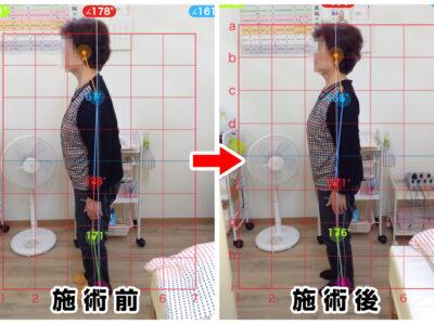 70代女性/姿勢改善、腰の曲がり