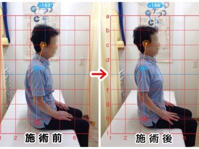 60代女性/腰の痛み、左殿部~足のシビレ、痛み