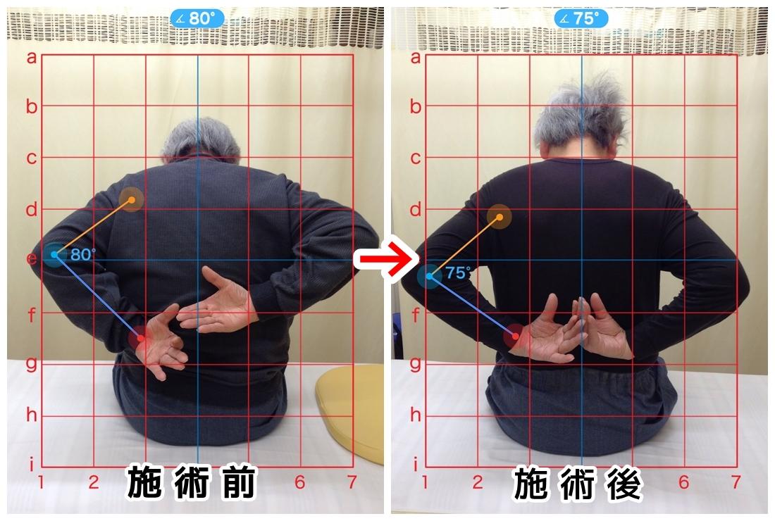 70代男性/左肩の痛み