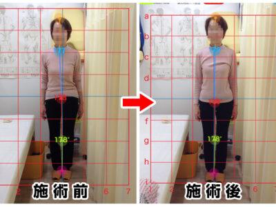 60代女性/腰の痛み、左膝の痛み