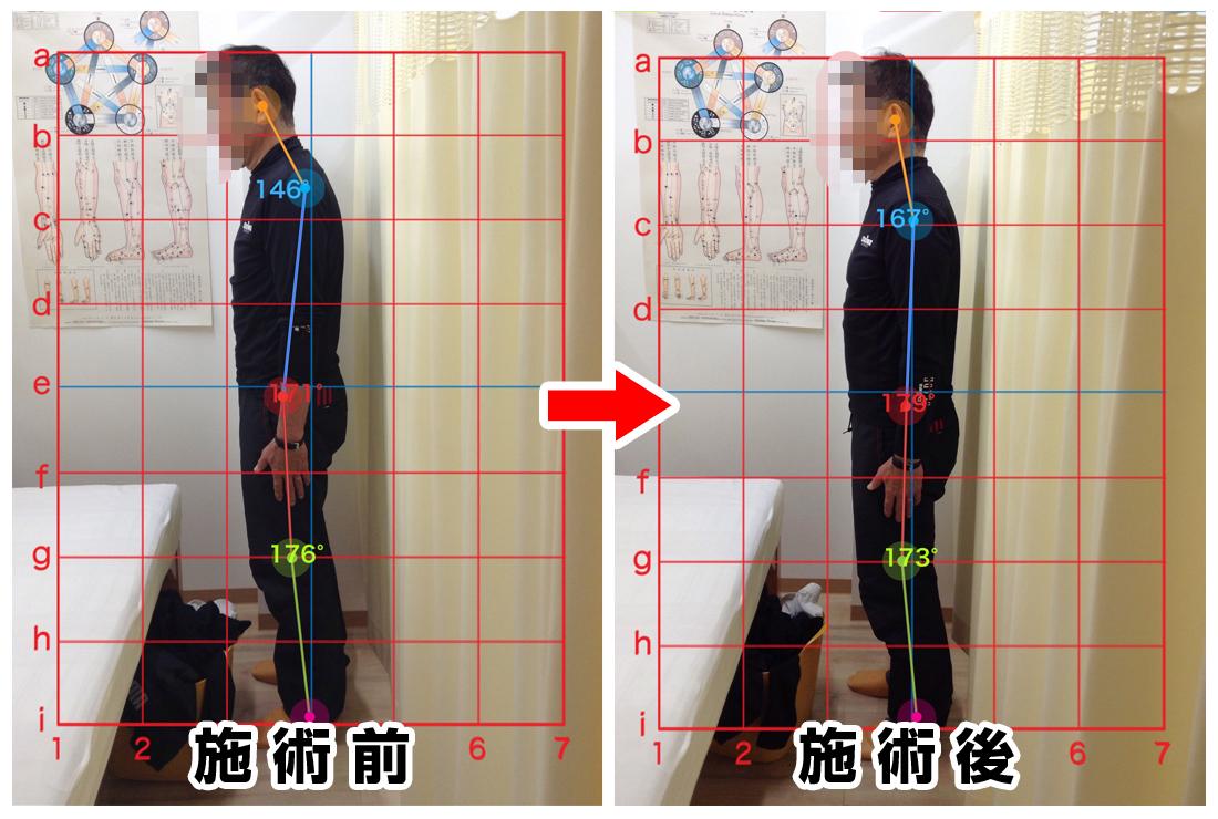 60代男性/右腰の痛み