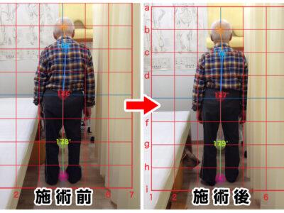 80代男性/左殿部と股関節の痛み01