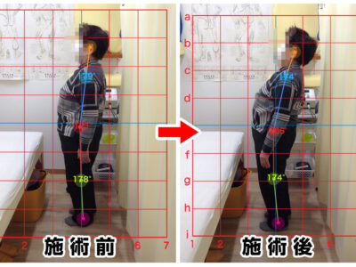 80代女性/右腰の痛み、右肩のコリ