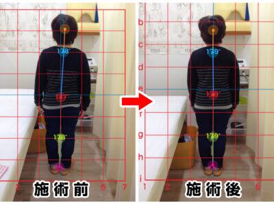 60代女性/右足の痛み、シビレ