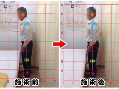 70代男性/腰の痛み、両膝の痛み01