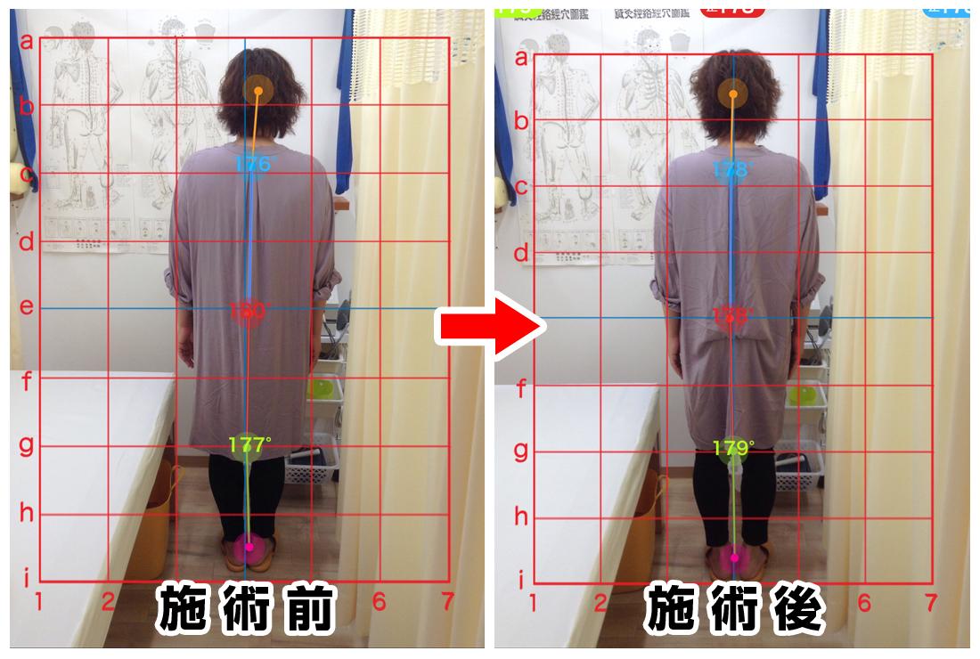 50代女性/背中から腰の痛み