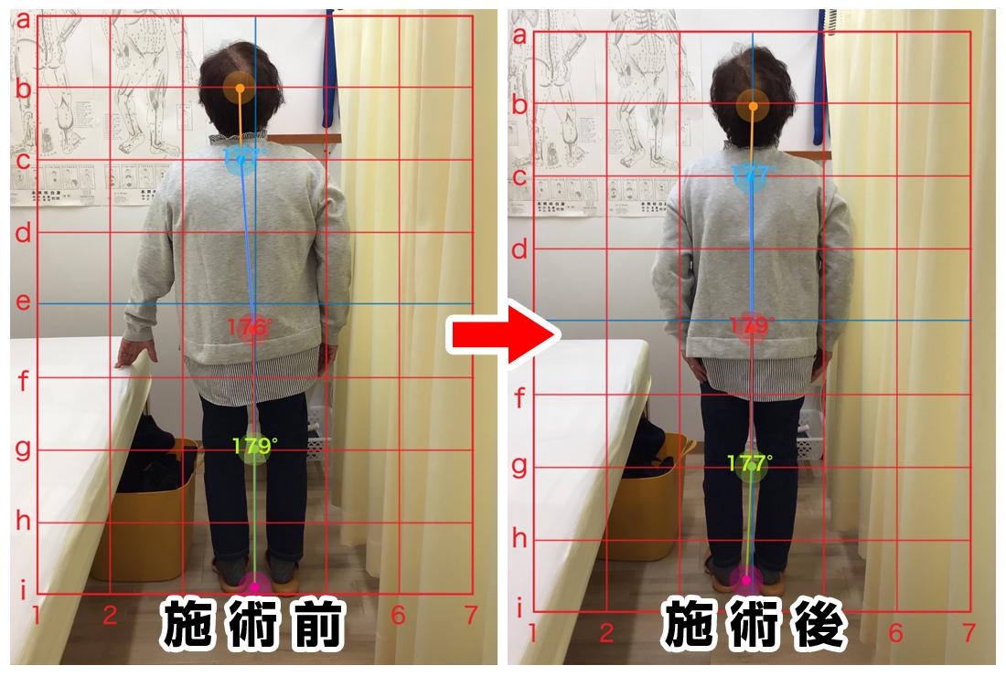 70代女性/腰の痛み、左足のシビレ02