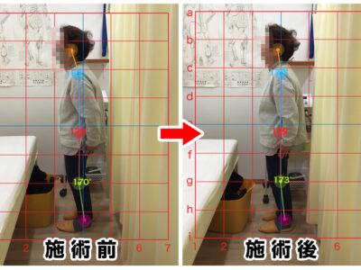70代女性/腰の痛み、左足のシビレ01