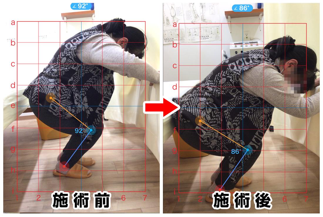 70代女性/右腰から殿部の痛み、右膝の痛み