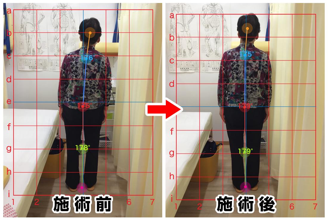 70代女性/左膝の痛み、腰の痛み02