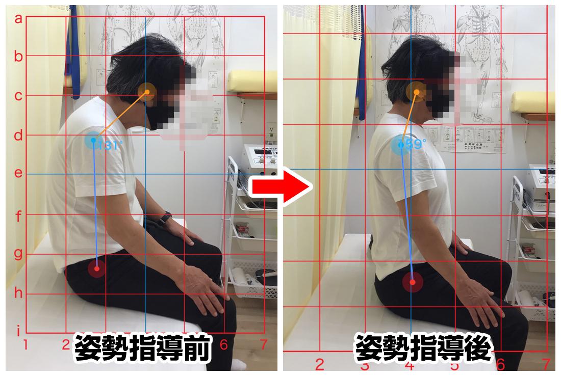60代男性/左肩から背中の痛み、シビレ
