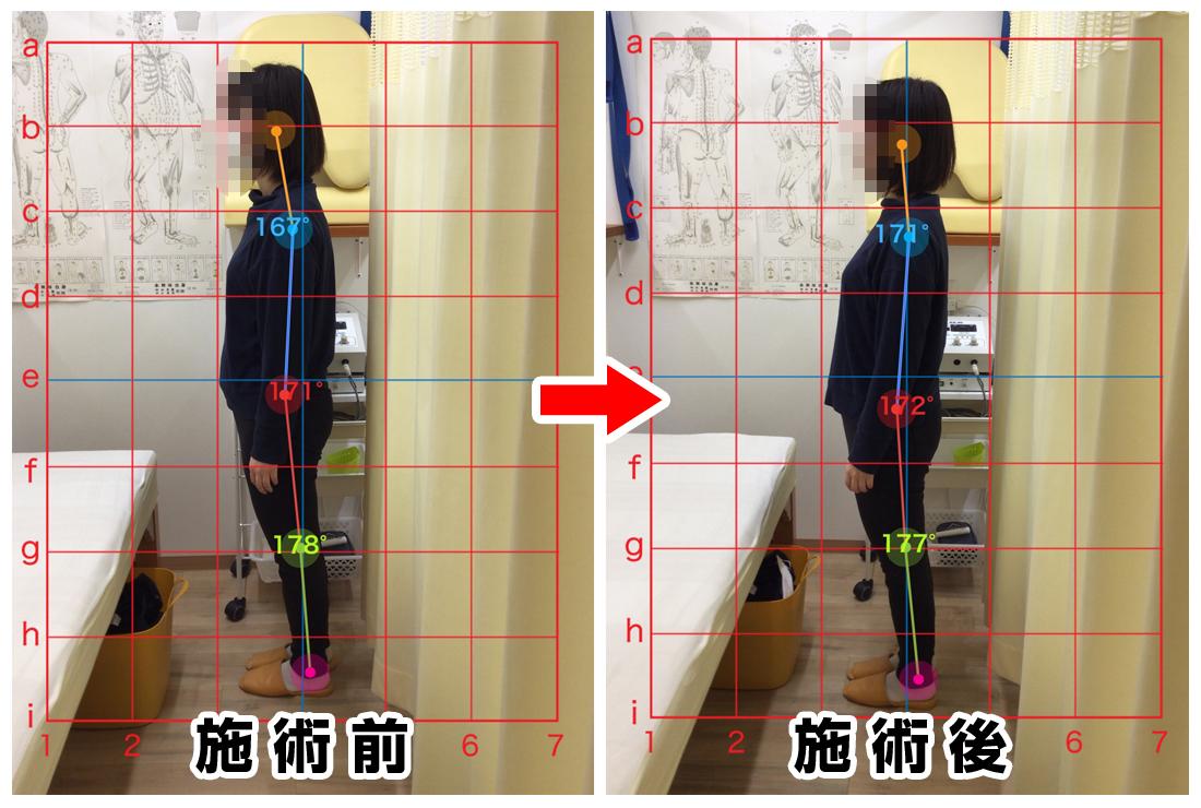 20代女性/猫背、姿勢改善、肩コリ