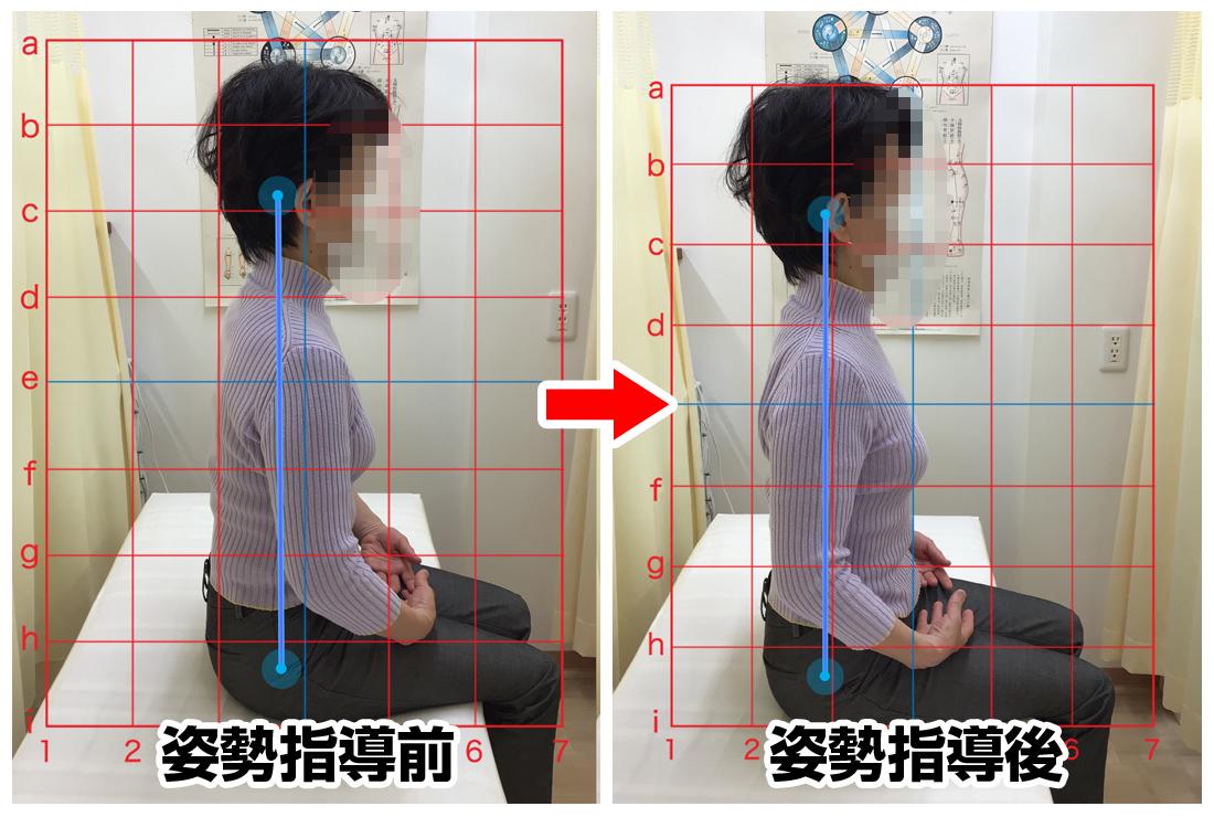 60代女性/肩コリ、腰痛