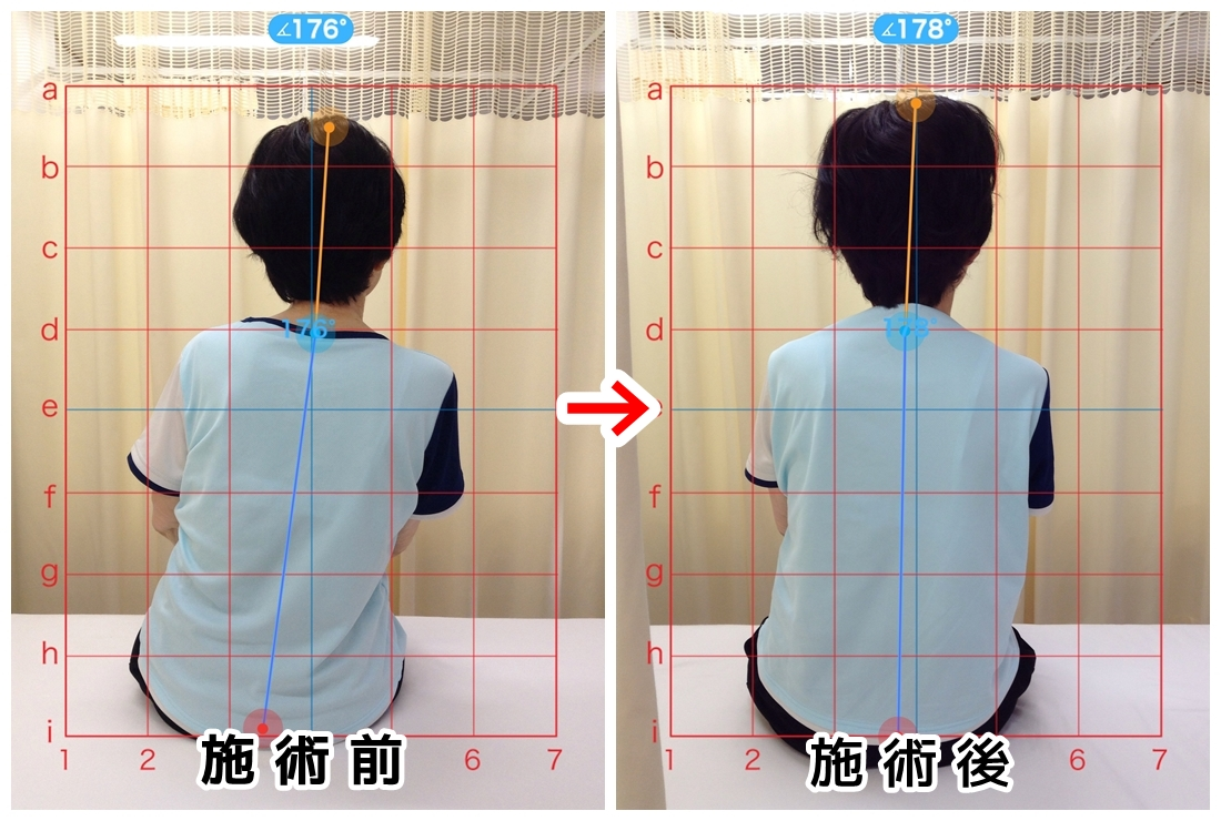 姿勢改善、側弯症